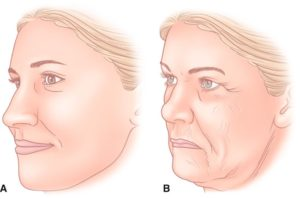 Процесс старения